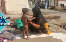 Children struggling with malnutrition, the government made plans